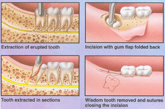 Wisdom Teeth Stitches Dissolve