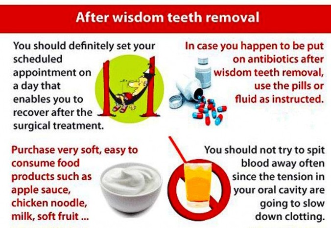 Wisdom Tooth Removal After Wisdom Teeth | mybette...