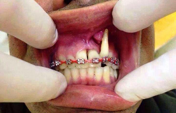 bahay pakai fake braces