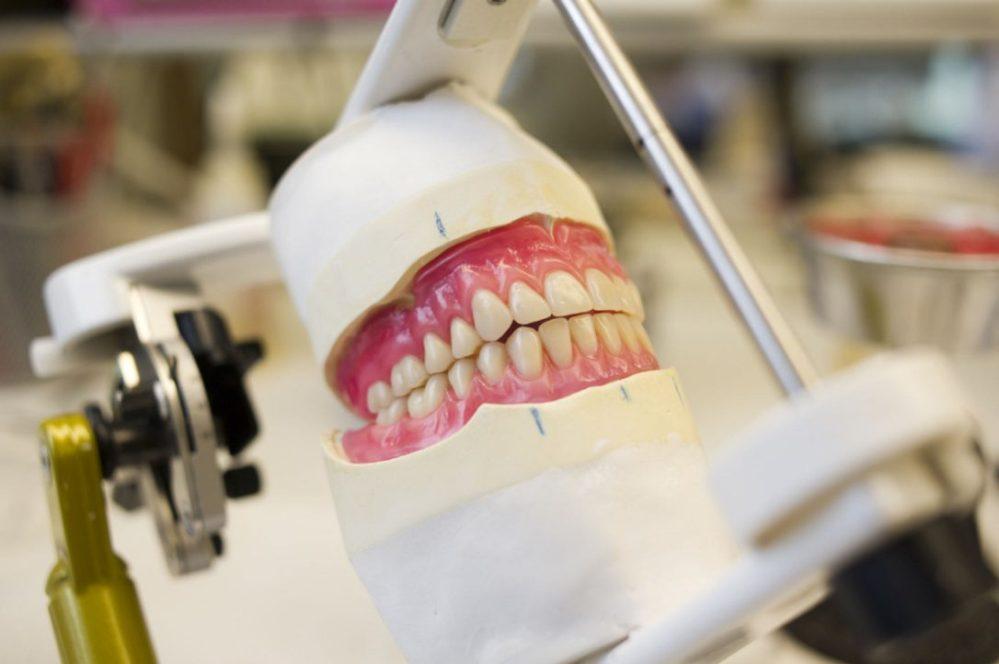 dentures-file