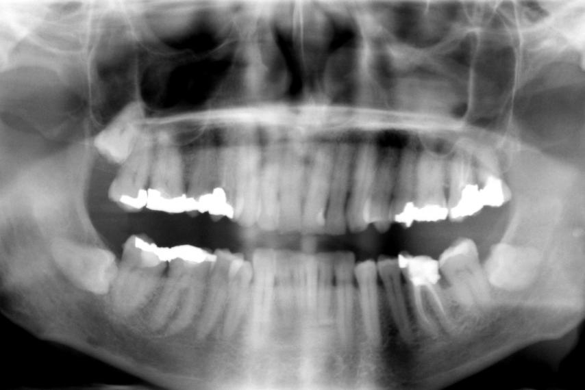 stem-cell-teeth-cavity-root-canal