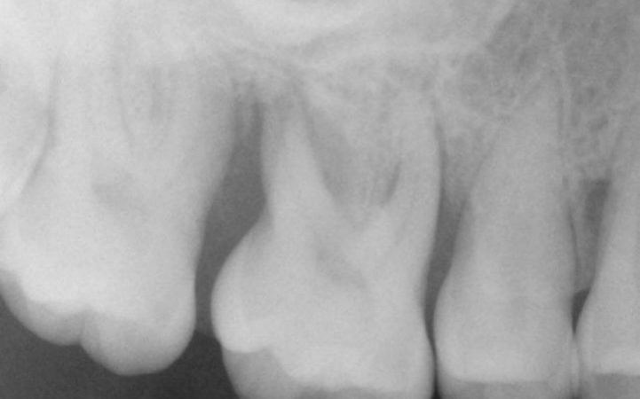 X-ray_of_teeth