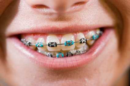 close-up-kid-with-braces.jpg