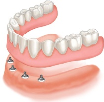 implant-full-lower-denture