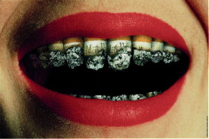 Tooth Loss & Smoking