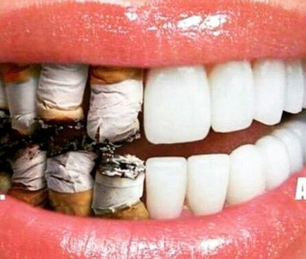 Merokok dan Kesehatan Gigi dan Mulut- Global Estetik Dental Care