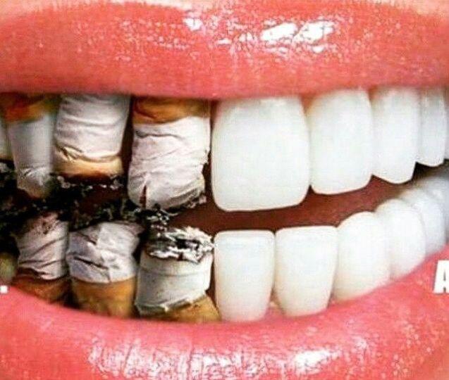 Dampak Buruk Merokok Bagi Kesehatan Gigi- Global Estetik Dental Care