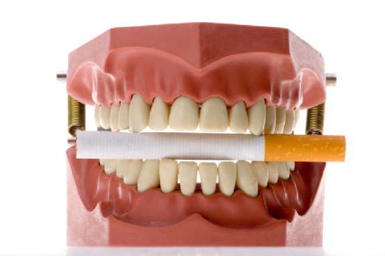 smoking-teeth-oral-care.png